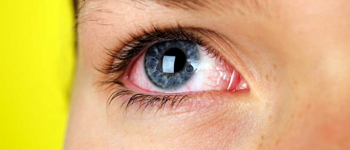 What to Expect When You Have Dry Eyes – Symptoms and Treatment Options